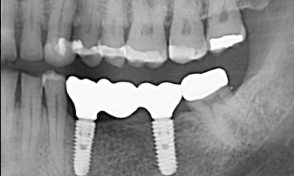 Implant-bridge-for-missing-molars-After-Image