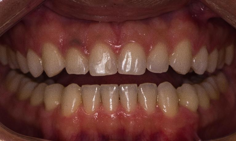 Invisalign-Orthodontic-treatment-After-Image