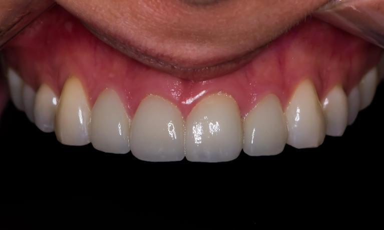 Porcelain-Veneers-on-upper-4-teeth-After-Image