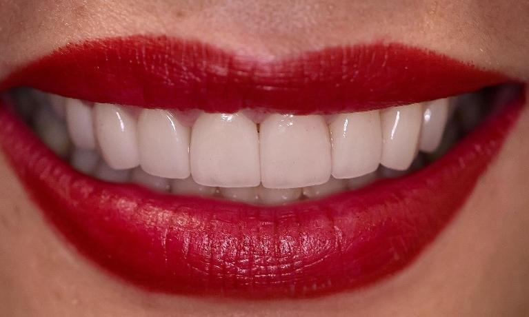 Smile-Design-With-Gum-Contouring-and-Veneers-After-Image