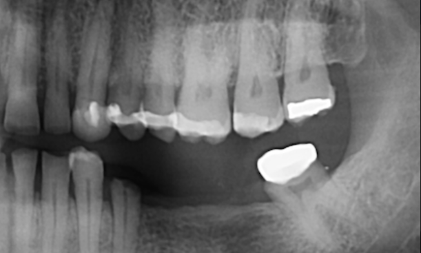 Implant-bridge-for-missing-molars-Before-Image