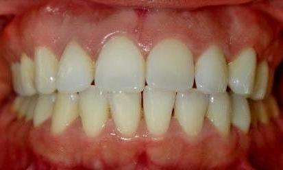 Invisalign-Orthodontic-treatment-Before-Image