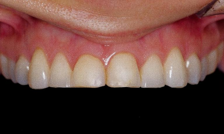 Porcelain-Veneers-on-upper-4-teeth-Before-Image
