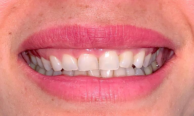 Smile-Design-With-Gum-Contouring-and-Veneers-Before-Image